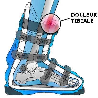 douleur tibiale ski